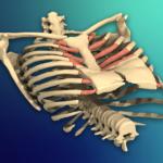 Nuss Ameliyatı: Pektus Ekskavatum (Kunduracı Göğsü)
